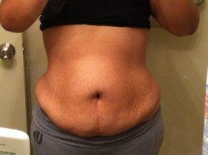 Hành trình căng da bụng mở rộng với đường mổ kéo dài lên hai bên hông và kết quả ngoài mong đợi