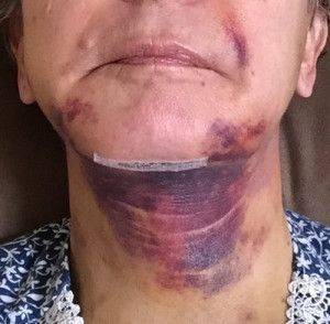 Căng da mặt để khắc phục má chảy xệ