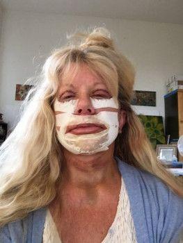 Trải nghiệm căng da mặt bằng kỹ thuật khâu dạng lưới đặcbiệt