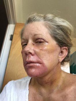 Căng da mặt và tái tạo bề mặt da bằng laser