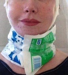 Căng da mặt sau khi phẫu thuật thẩm mỹ hỏng