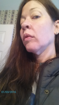 Căng da mặt ở tuổi 64
