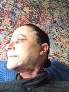 Căng da mặt với mức giá hợp lý