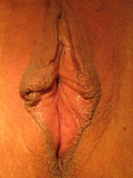 Phẫu thuật tạo hình, thắt chặt âm đạo kết hợp tạo hình môi bé cho người phụ nữ không sinh thường nhưng nhiều mô da lỏng lẻo