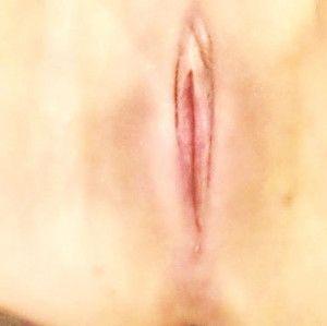 Mẹ 35 tuổi 2 con với hành trình phẫu thuật trẻ hóa âm đạo kết hợp tạo hình môi bé và chỉnh sửa đáy chậu.