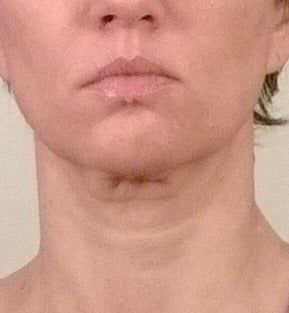 Cô gái 26 tuổi lấy lại cảm giác tự tin quyến rũ sau quy trình tạo hình môi bé âm hộ