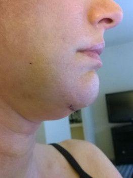 46 tuổi và đã sẵn sàng căng da mặt