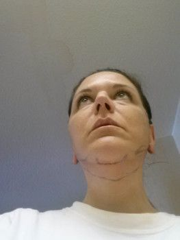 54 tuổi, tạm biệt cổ chảy xệ và thay đổi hẳn cuộc sống nhờ phẫu thuật căng da cổ