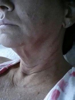 Căng da mặt sau nhiều năm tiêm filler