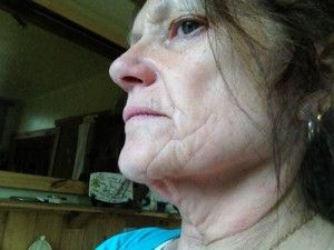 Review căng da cổ, căng da phần dưới của mặt và kết quả sau 3 năm