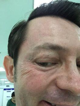 Căng da mặt bằng chỉ do má xệ và cổ gà tây, hiệu quả bền lâu hơn kỳ vọng
