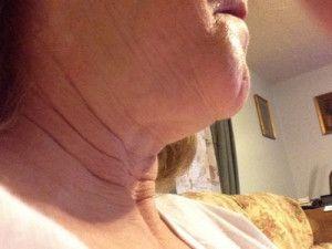 Khắc phục cổ đầy, nọng cằm và nếp nhăn hai bên miệng với phương pháp căng da cổ
