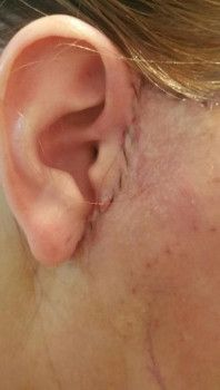 Hành trình cấy mỡ tự thân vùng mông của bà mẹ 3 con, 30 tuổi