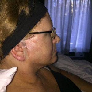 Kết quả hài lòng sau khi căng da cổ và căng da vùng mặt dưới ở tuổi 48