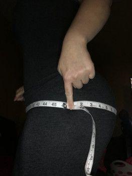 Hành trình nâng mông với túi độn đặt dưới cân cơ kết hợp cấy mỡ tự thân