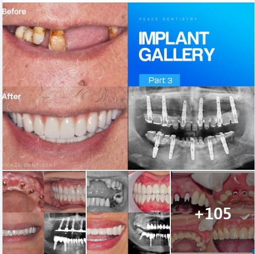 PEACE DENTISTRY GALLERY - IMPLANT (PART 3)