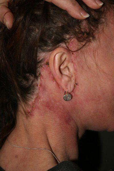 Cách khắc phục mất tóc sau phẫu thuật căng da mặt?