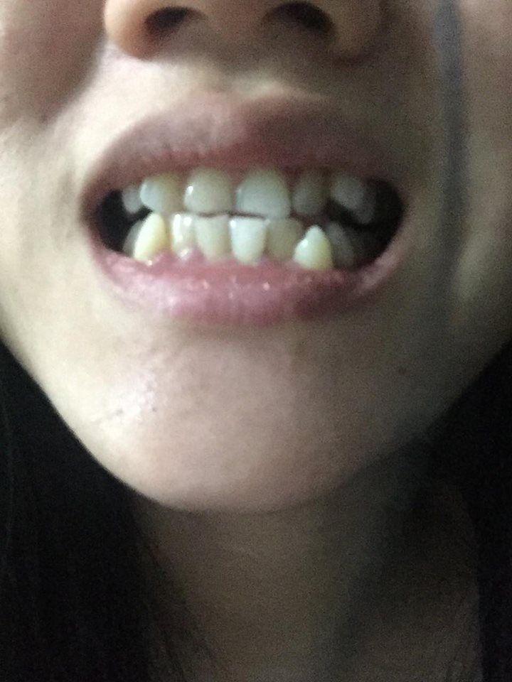 Nên niềng răng rồi mới dán veneer hay sao ạ?