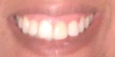 4 răng cửa rất to, dài và rộng có phù hợp với mặt dán sứ Lumineer không?