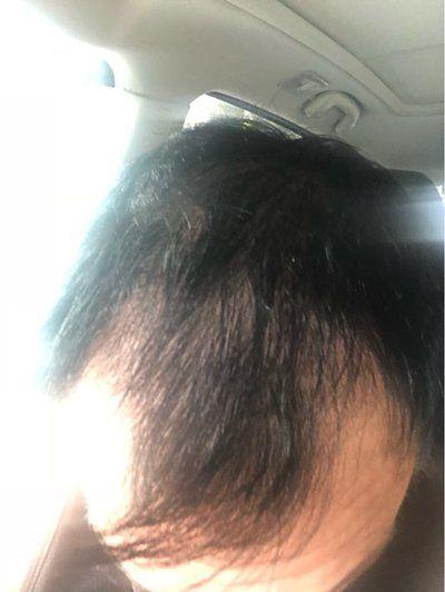 Tôi nên cấy tóc ngay bây giờ hay nên đợi?