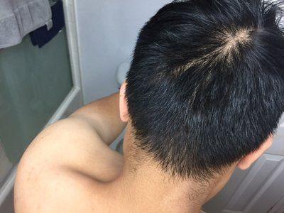 Có nên cấy tóc ở tuổi thanh niên không?