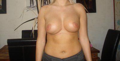 Chỉnh sửa ngực hư hỏng giá bao nhiêu?