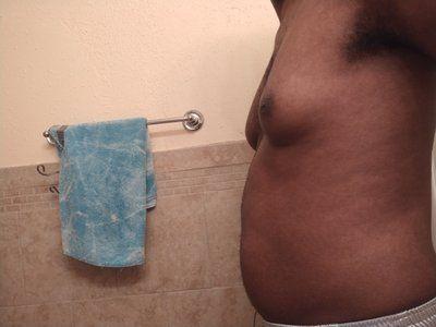 Hút mỡ bằng sóng siêu âm Vaser có phải là giải pháp tốt nhất để loại bỏ mỡ thừa trên ngực nam giới không?