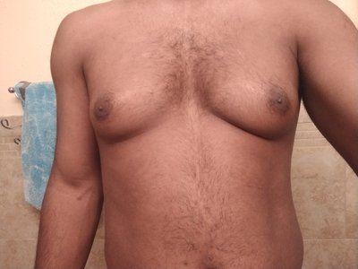 Hút mỡ bằng sóng siêu âm có phải là giải pháp tốt nhất để loại bỏ mỡ thừa trên ngực nam giới không?