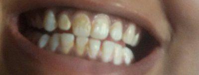 Cách loại bỏ những vùng nâu vàng trên răng?