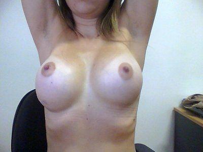 Có phải là biến chứng lồi đáy vú sau nâng ngực?