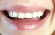 Cần phải mài đi bao nhiêu răng trước khi gắn mặt dán sứ Veneer hoặc mặt dán sứ Lumineer?