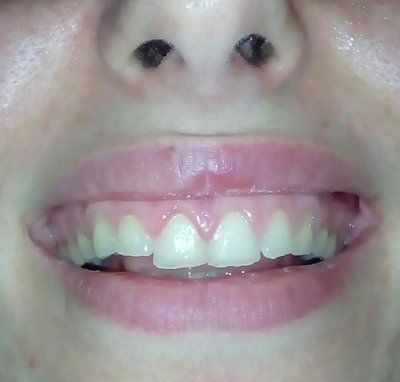 Men răng mỏng khắc phục bằng cách nào?