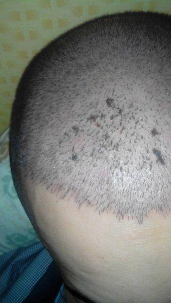 Điều gì xảy ra sau một tháng sau cấy tóc bằng kỹ thuật FUE?