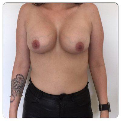 Có cần treo ngực sa trễ sau khi đặt túi độn được 6 tuần không?