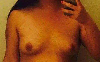 Có thể làm cho vú trở nên căng tròn sau khi bị chảy xệ thành hình ovan không?