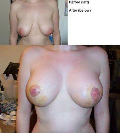 Hai bên núm vú không đều nhau sau nâng ngực chảy xệ và đặt túi độn