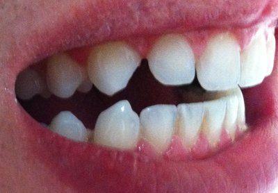 Răng nhọn và mẻ: nên chọn dán bonding hay dán sứ Veneer?