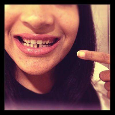Răng thưa hàm dưới và dán composite