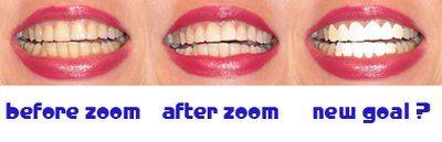 Răng bị xỉn màu do dùng thuốc kháng sinh tetracycline: nên chọn mặt dán sứ Veneer hay mặt dán sứ Lumineer?