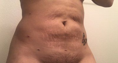 Tại sao tôi có các vết lõm và mô sẹo sau 2 tuần hút mỡ bằng sóng siêu âm VASER