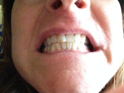 Cách tẩy trắng răng hiệu quả nhất cho răng bị đục và xám?
