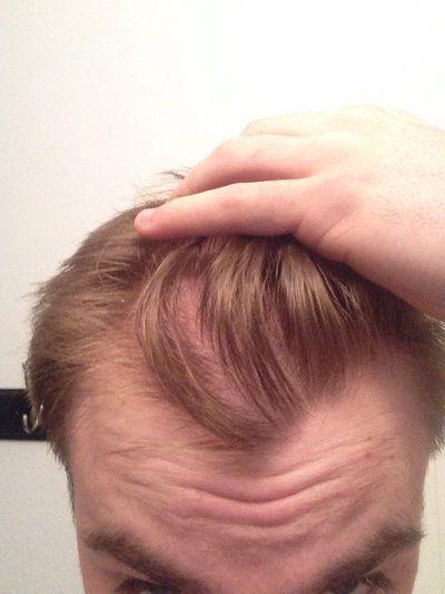 Độ tuổi trẻ nhất có thể thực hiện cấy tóc tự thân?