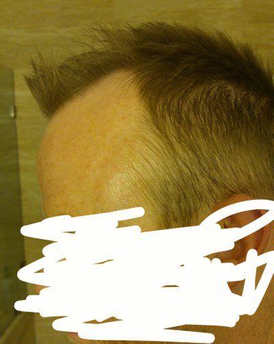 Tôi có phù hợp với cấy tóc không, nếu có thì nên thực hiện kỹ thuật FUT hay FUE? 34 tuổi, có nên đợi không?