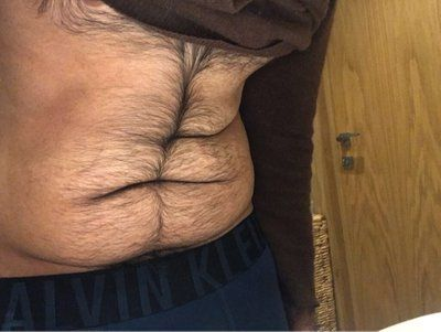 Hút mỡ bằng siêu âm Vaser với phẫu thuật căng da bụng: tôi có nên thực hiện VASER trước không?