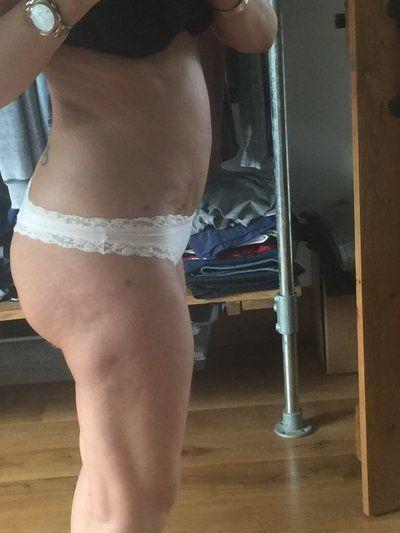 3 tháng sau hút mỡ bằng sóng siêu âm tại sao bụng tôi bị biến dạng, hai bên đùi thì trông rất khủng khiếp, tôi trông còn béo hơn