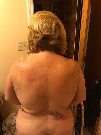 48 giờ sau khi hút mỡ Vaser ở vùng áo ngực, lưng và đùi dưới
