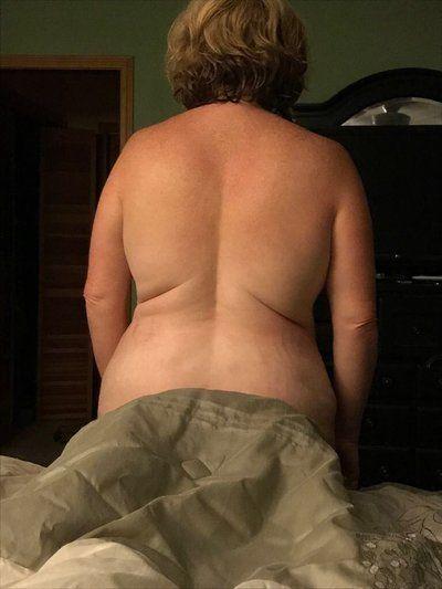 Hút mỡ bằng sóng siêu âm điều trị các ngấn mỡ lằn ở vùng áo ngực? Liệu nó có khác đi được không, xin hãy giúp tôi