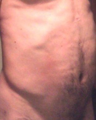Da đổi màu và hình thành mô sẹo sau hút mỡ VASER Hi Def mạnh – 13 tuần sau điều trị. Các bạn có lời khuyên gì cho tôi không?