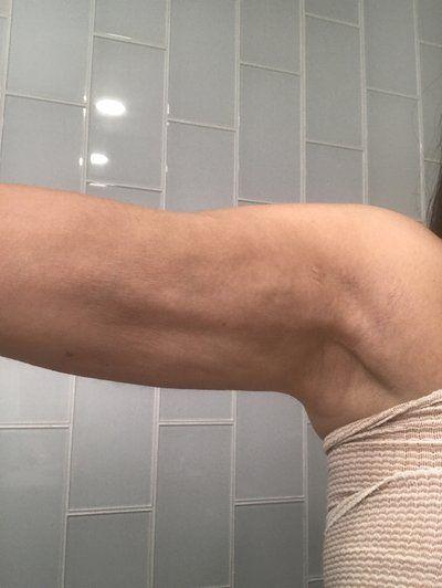 Đây có phải là một phần của quá trình hồi phục hay là một bất thường sau khi hút mỡ bằng sóng siêu âm Vaser cánh tay?