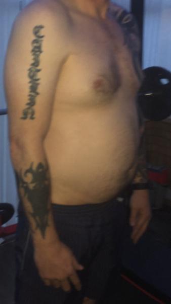 Tôi muốn hút mỡ VASER vì những năm qua tăng rất nhiều cân, nhưng tôi lo là mình không hợp với quy trình này